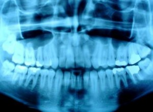digital xrays valleyfair dental