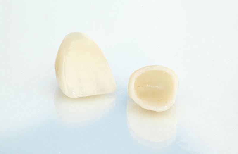 dental crowns in maple ridgle