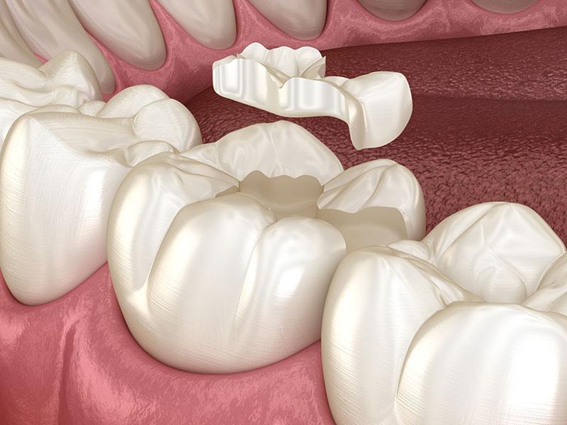 dental fillings in maple ridge