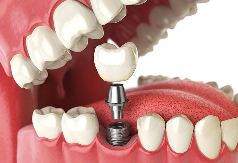 dental implants in maple ridge
