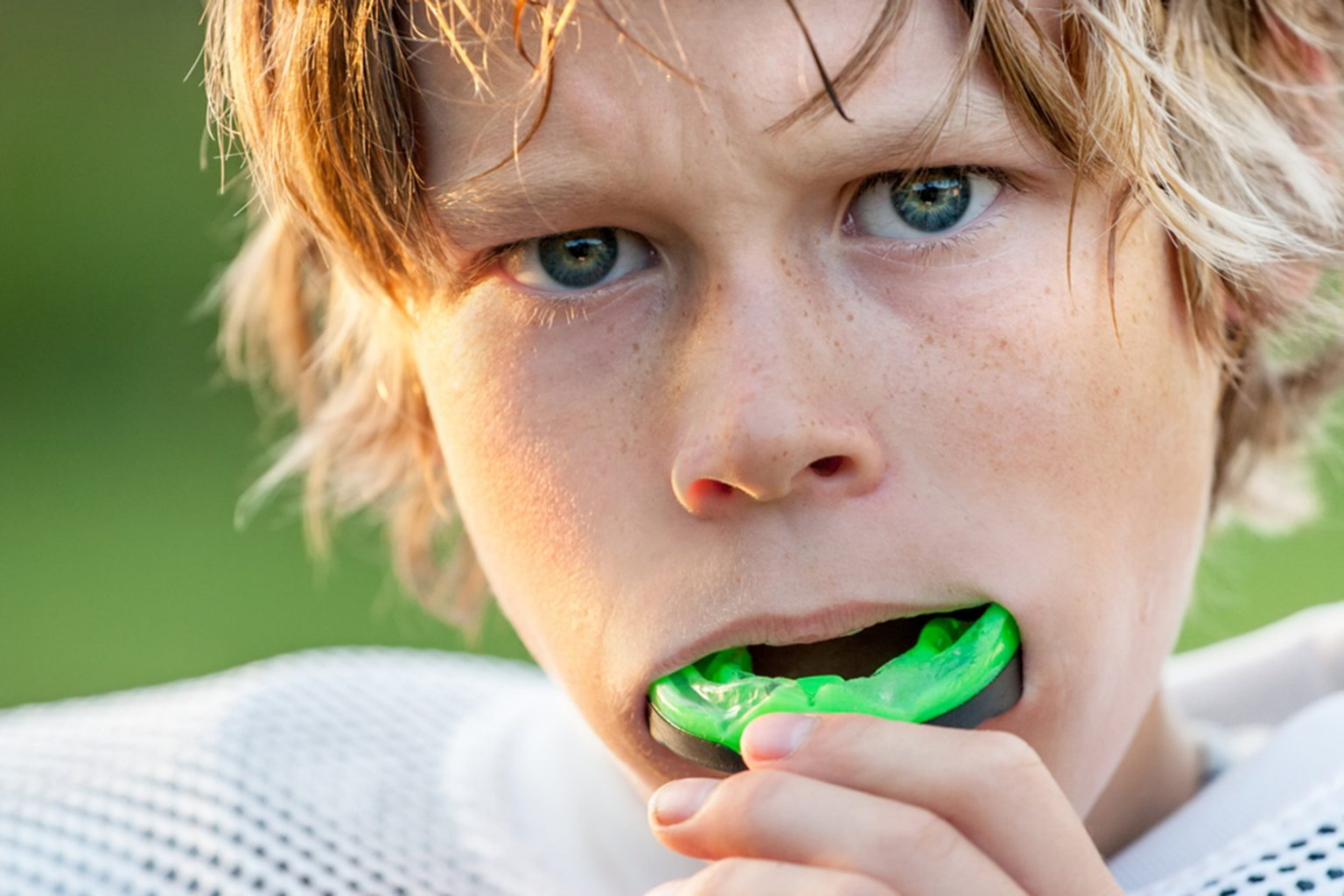 mouth guards in maple ridge