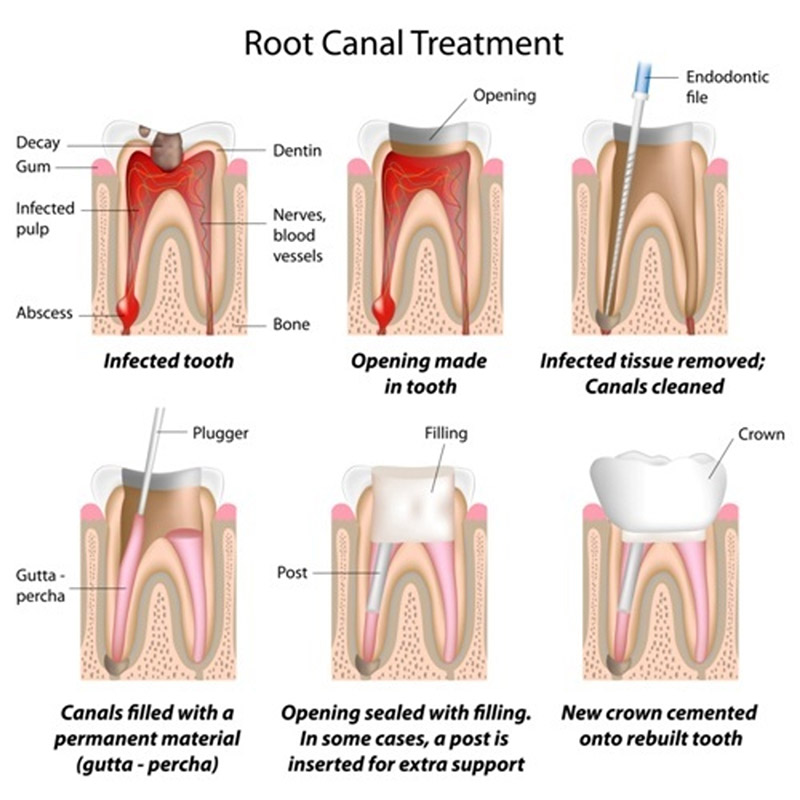root canal therapy in maple ridge
