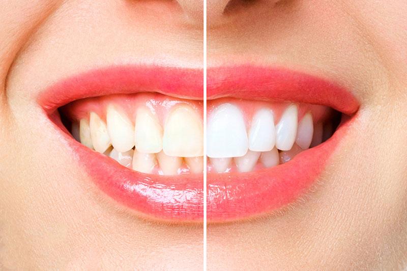 teeth whitening in maple ridge