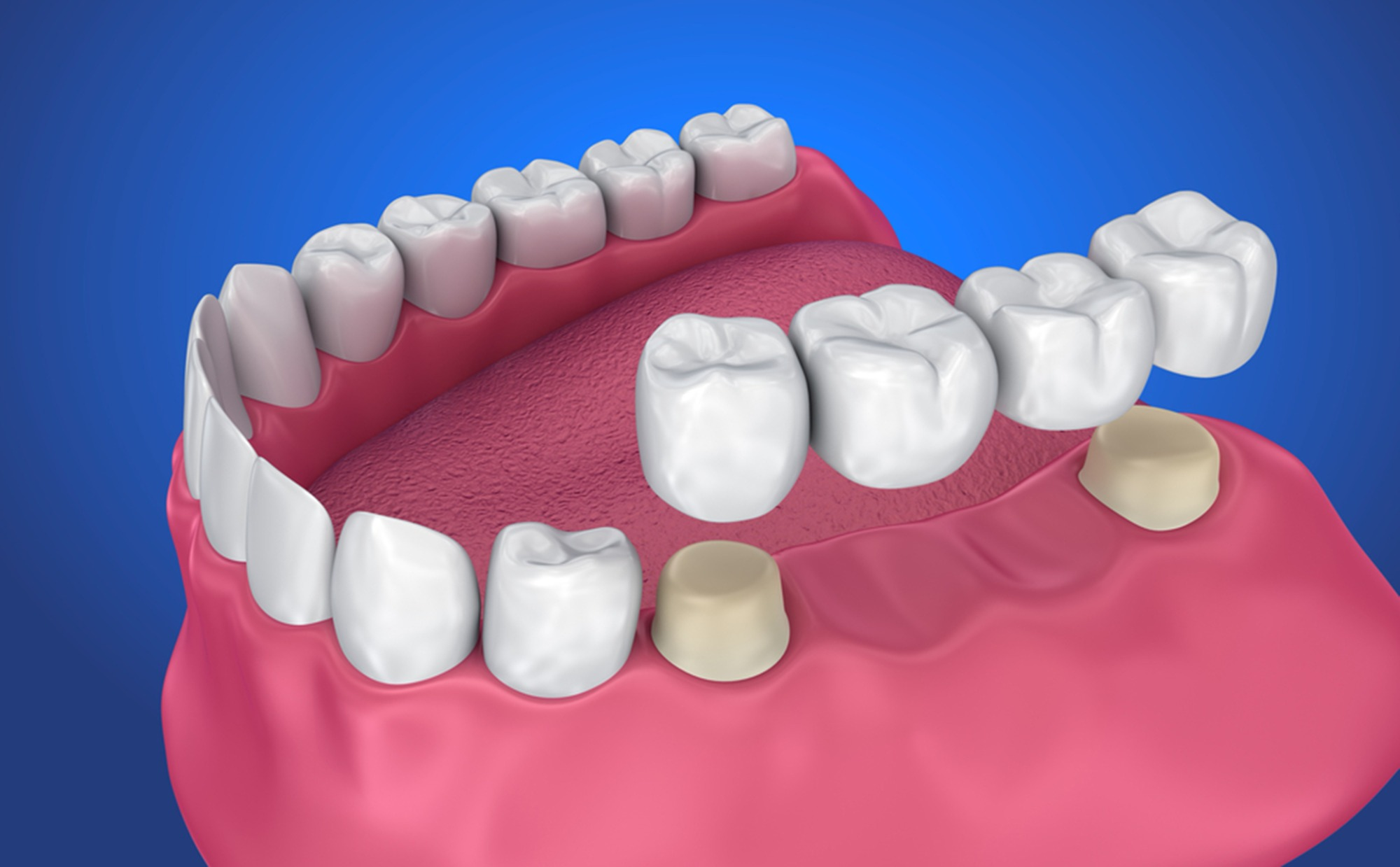 common-dental-bridge-complications